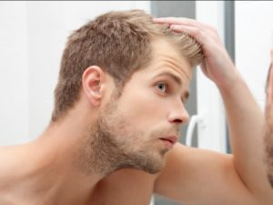 Tips for balding men